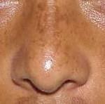 چطور لکههای قهوهای پوست را درمان کنیم؟