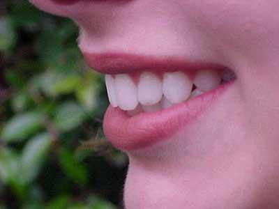 راههی سفید کردن دندان