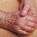 راههای درمان کبودیهای بدن