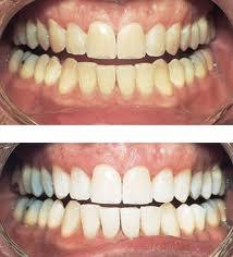 سفید کردن دندان ها، چه خطراتی دارد؟