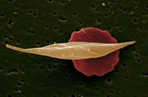 هيپرليپيدمي يا چربي خون بالا چیست؟