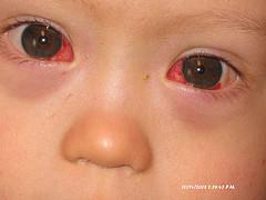 بيماريهاي خطرناك چشم