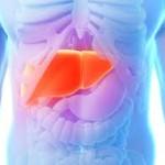 27263177530678 150x150 - آیا روشی برای درمان بیماری کبد چرب وجود دارد ؟