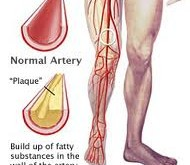 چگونه پاها از سلامتی قلب خبر میدهند؟