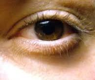 چشمها و نشانههای بیماری کبدی