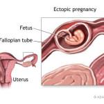 امکان بارداری در زمان خونریزی زنان و دختران