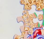 تحلیل رفتن استخوانها با بروز نارسایی قلبی مرتبط است