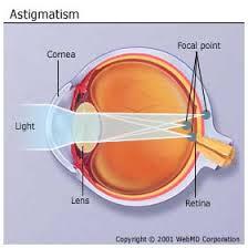 بهترين ويتامين ها براي درمان آستيگماتيسم