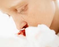 خونریزی بینی