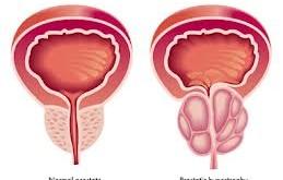 حفظ سلامت پروستات به روش طبیعی