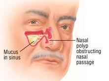 درمان طبیعی برای پولیپ بینی