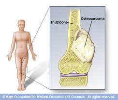 سرطان استخوان (Bone Cancer)
