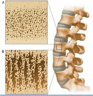 ۶ روش تقویت استخوانها
