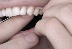 روش استفاده از نخ دندان