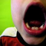 مهمترین عامل پوسیدگی دندان در کودکان کشف شد