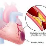 عوامل خطر حمله قلبی