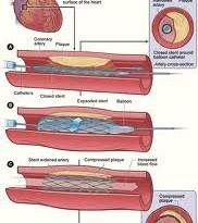 تنگی عروق کرونر شایعترین بیماری قلبی