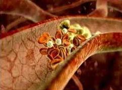 کنترل کلسترول خون