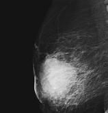 علايم و راههاي تشخيص سرطان پستان