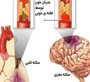 تاثیر نماز بر کاهش سکته قلبی و مغزی