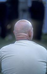 bald2