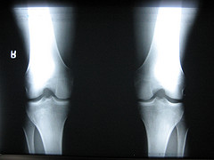 knee-joint1