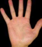 عرق کردن دستها ارثی است