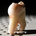 با دندان عقل چه كنيم؟