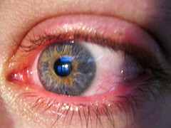 قرمز شدن چشم