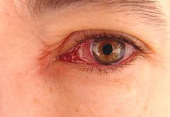 کاربران کامپیوتر در معرض ابتلا به بیماری آب سیاه چشم