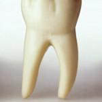 شناخت علل پوسیدگی دندان