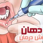 آفت دهان چیست ؟ + روش درمان