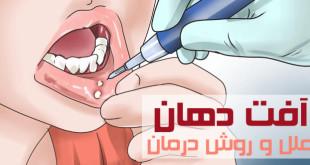 آفت دهان چیست ؟ روش درمان آفت دهان