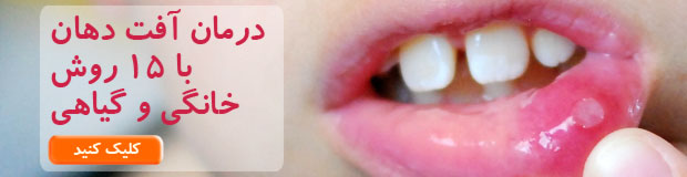 mouth-ulcer1