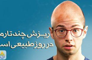 مقدار طبیعی ریزش مو چقدر است ؟ - پارسی طب