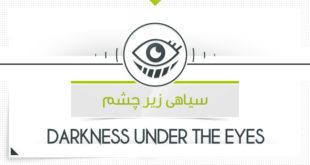 درمان سیاهی زیر چشم با محصولات پارسی طب
