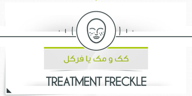 درمان کک و مک یا فرکل با محصولات پارسی طب