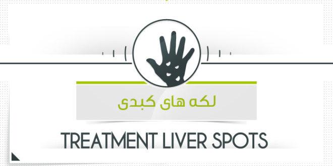 درمان لکه های کبدی لکه های پیری با محصولات پارسی طب