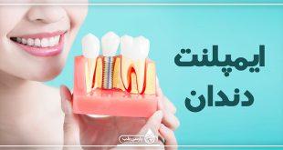 هر آنچه درباره ایمپلنت و کاشت دندان باید بدانید !