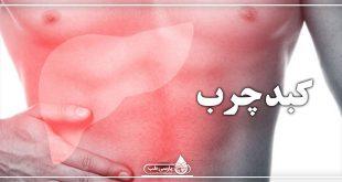 مهمترین علل بروز بیماری کبد چرب چیست ؟