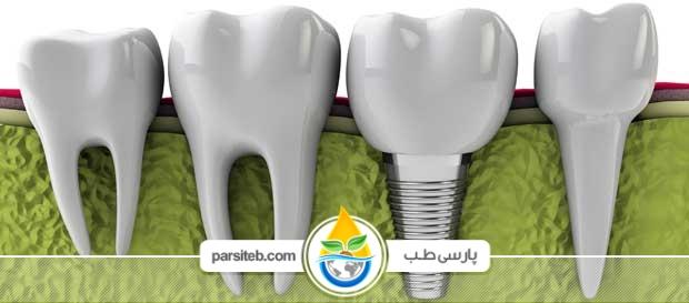 قرار دادن دندان روی ایمپلنت ممکن است کمی وقتگیر باشد