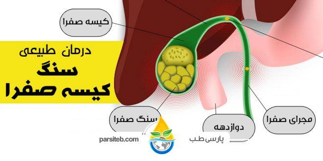 سنگ کیسه صفرا با این 9 روش درمان می شود