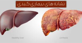 6 مشکلی که نشانه بیماری کبدی هستند !
