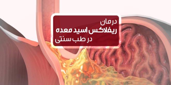 درمان ریفلاکس اسید معده و سوزش سر دل
