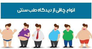 انواع چاقی از نظر حکمای طب سنتی چیست ؟