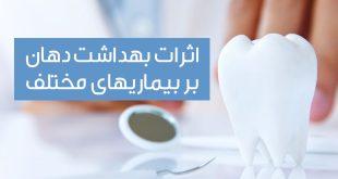 ارتباط متقابل بهداشت دهان و دندان و بیماری های داخلی