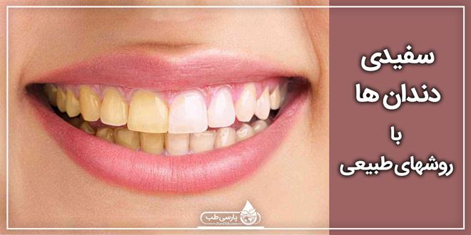 سفیدی دندان ها با روشهای طبیعی