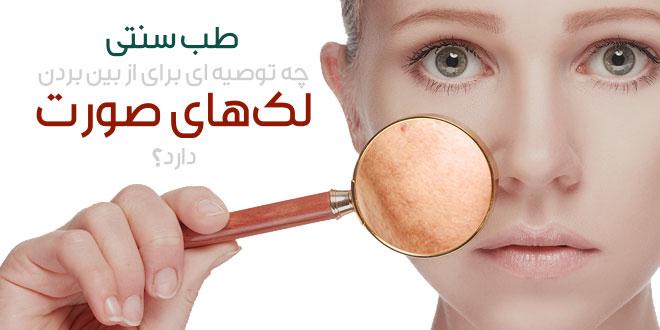لک های صورت در طب سنتی چگونه درمان می شوند ؟