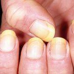 yellow-nails