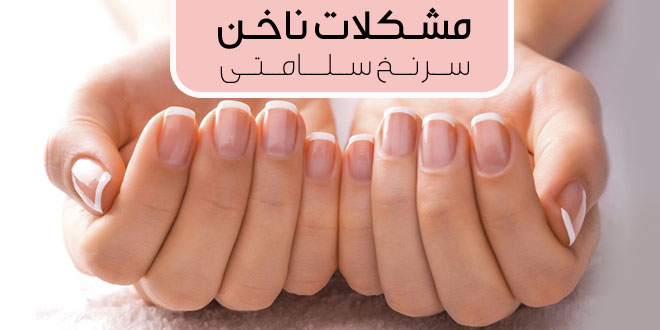 مشکلات ناخن های شما می تواند سرنخ سلامت شما باشد - پارسی طب
